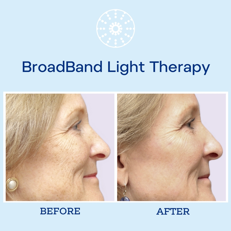 Achieve that youthful glow you know and love through BBL therapy.